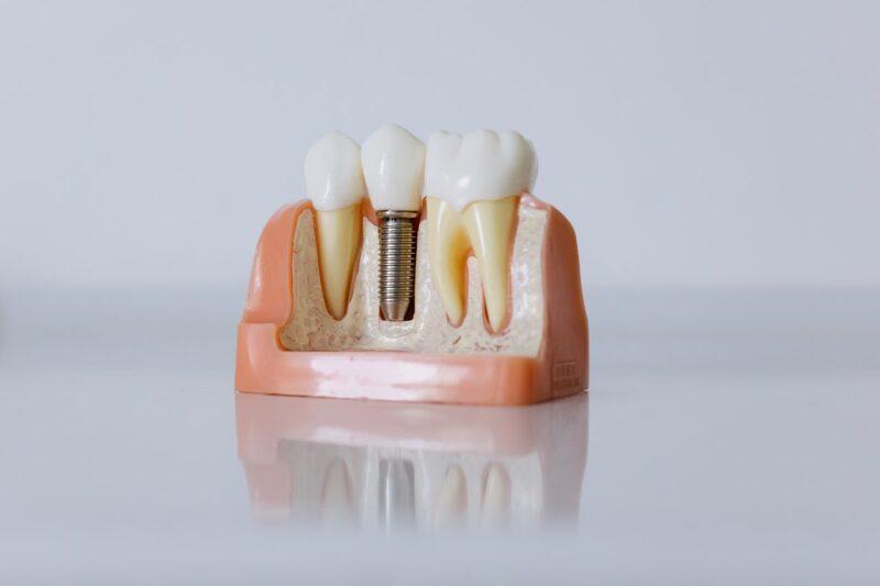 Zobni vsadki – Cena se razlikuje glede na kakovost